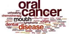 Dispelling The Myths About Oral Cancer